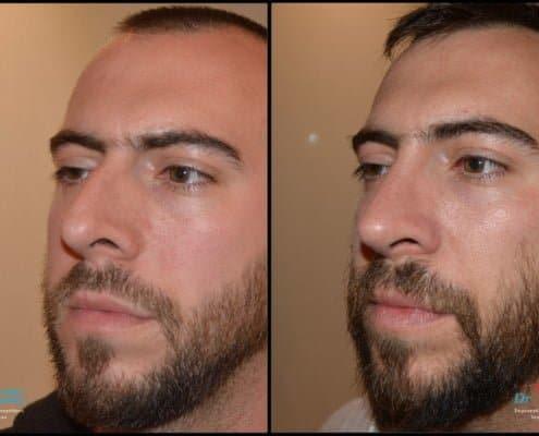Λοξή μύτη με ορατά ρουθούνια