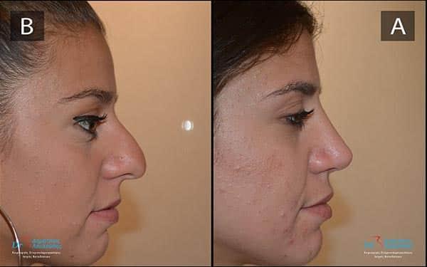 μύτη με καμπούρα