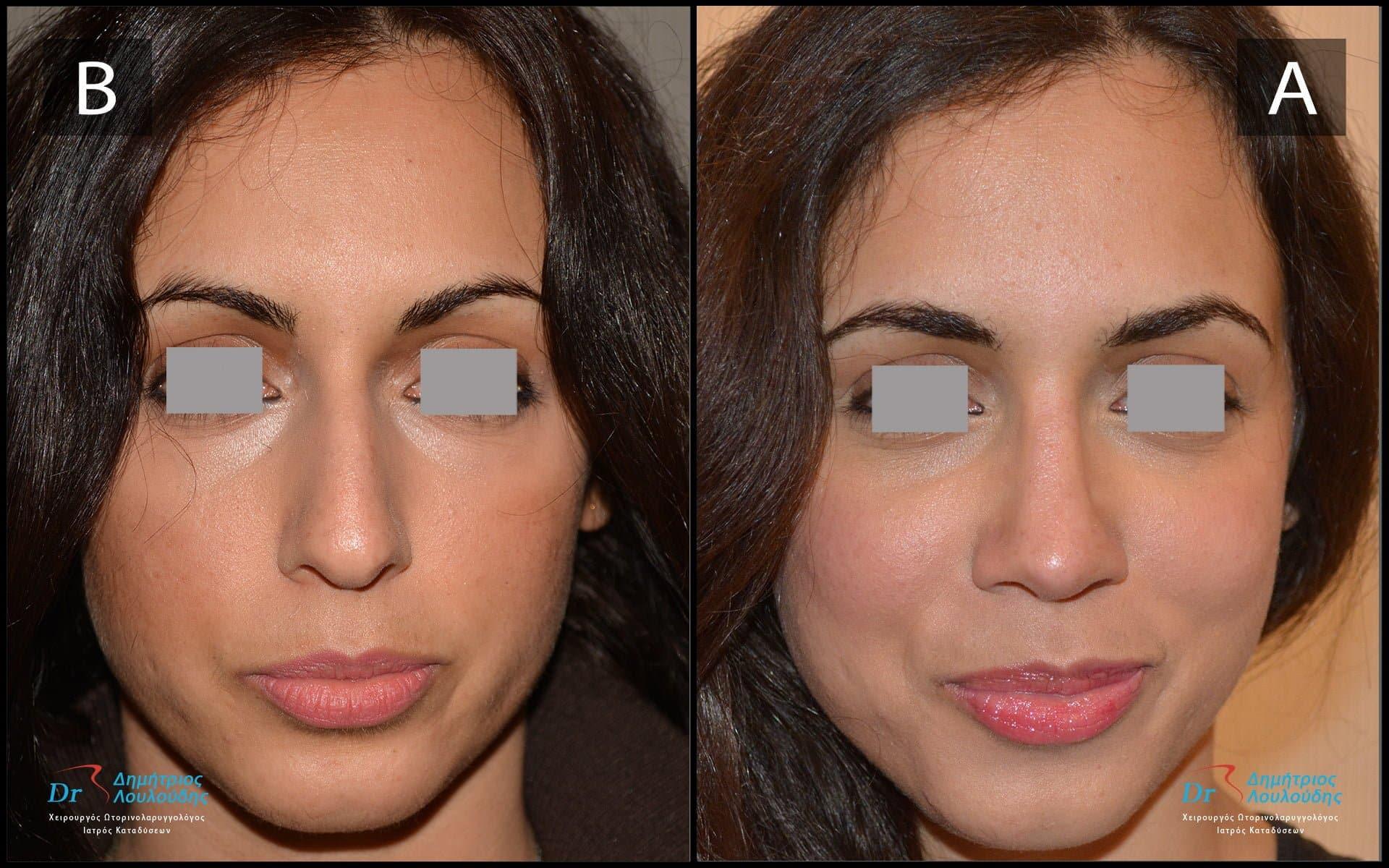 Η ιδανική για το πρόσωπο μύτη
