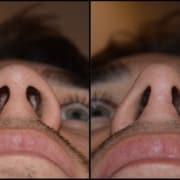 Φαρδιά μύτη