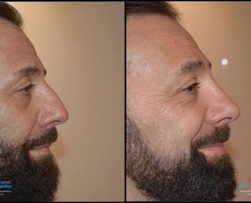 Male rhinoplasty