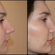 Αόρατη ουλή – Πλουσιότερο άνω χείλος