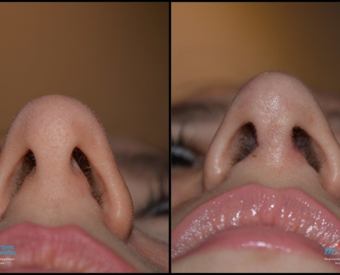 Tension nose