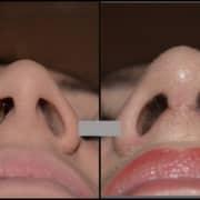 Σαρκώδες άνω χείλος