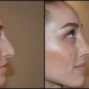 Μύτη με λεπτό δέρμα