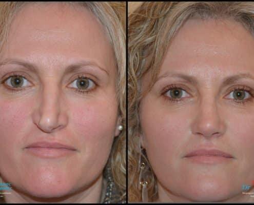 Ρινοπλαστική σε λοξή μύτη μαζί με την επέμβαση διαφράγματος